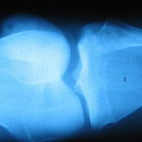 Röntgen foto